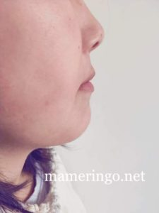 歯列矯正中 横顔